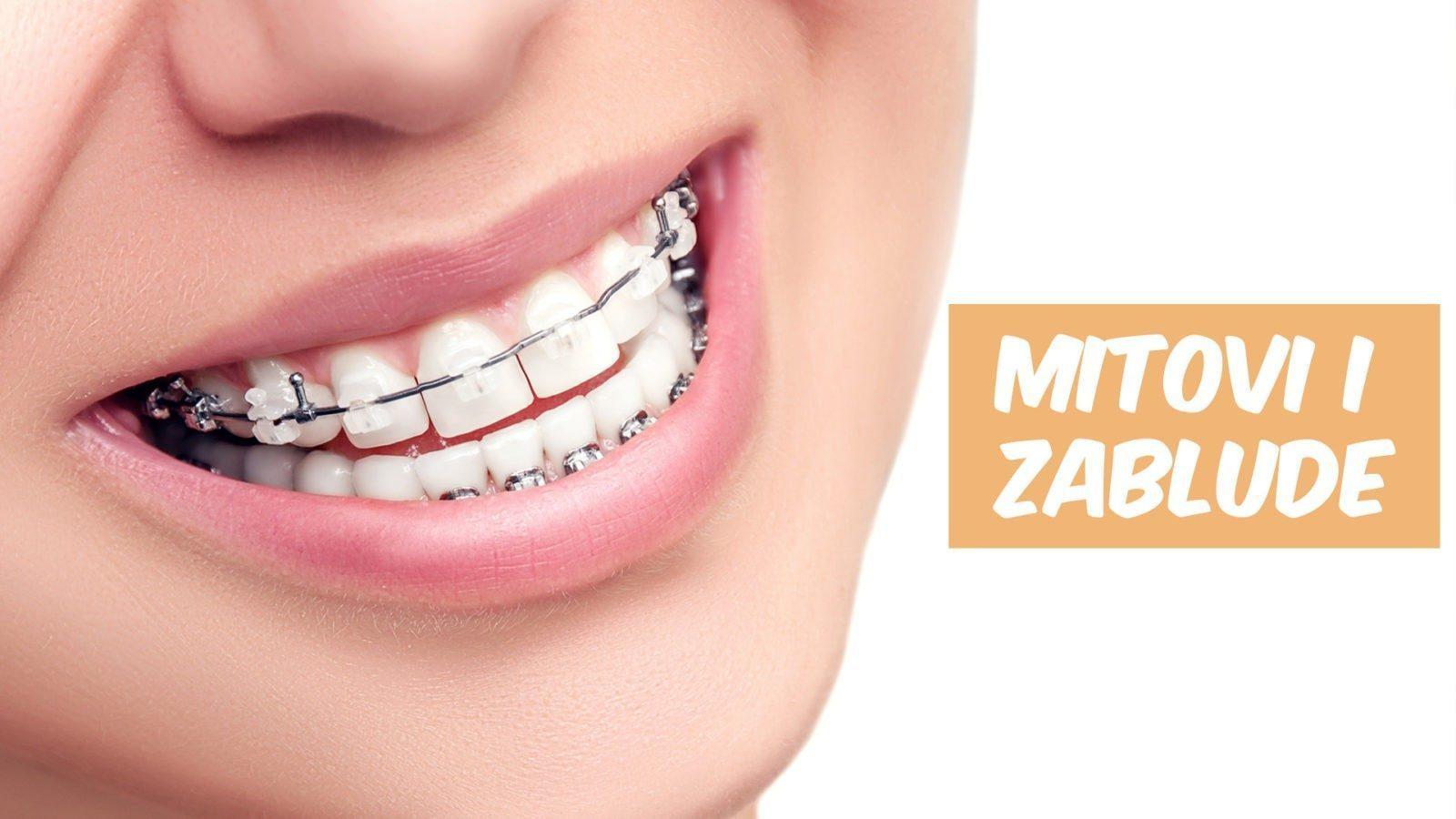 fiksni aparat za zube