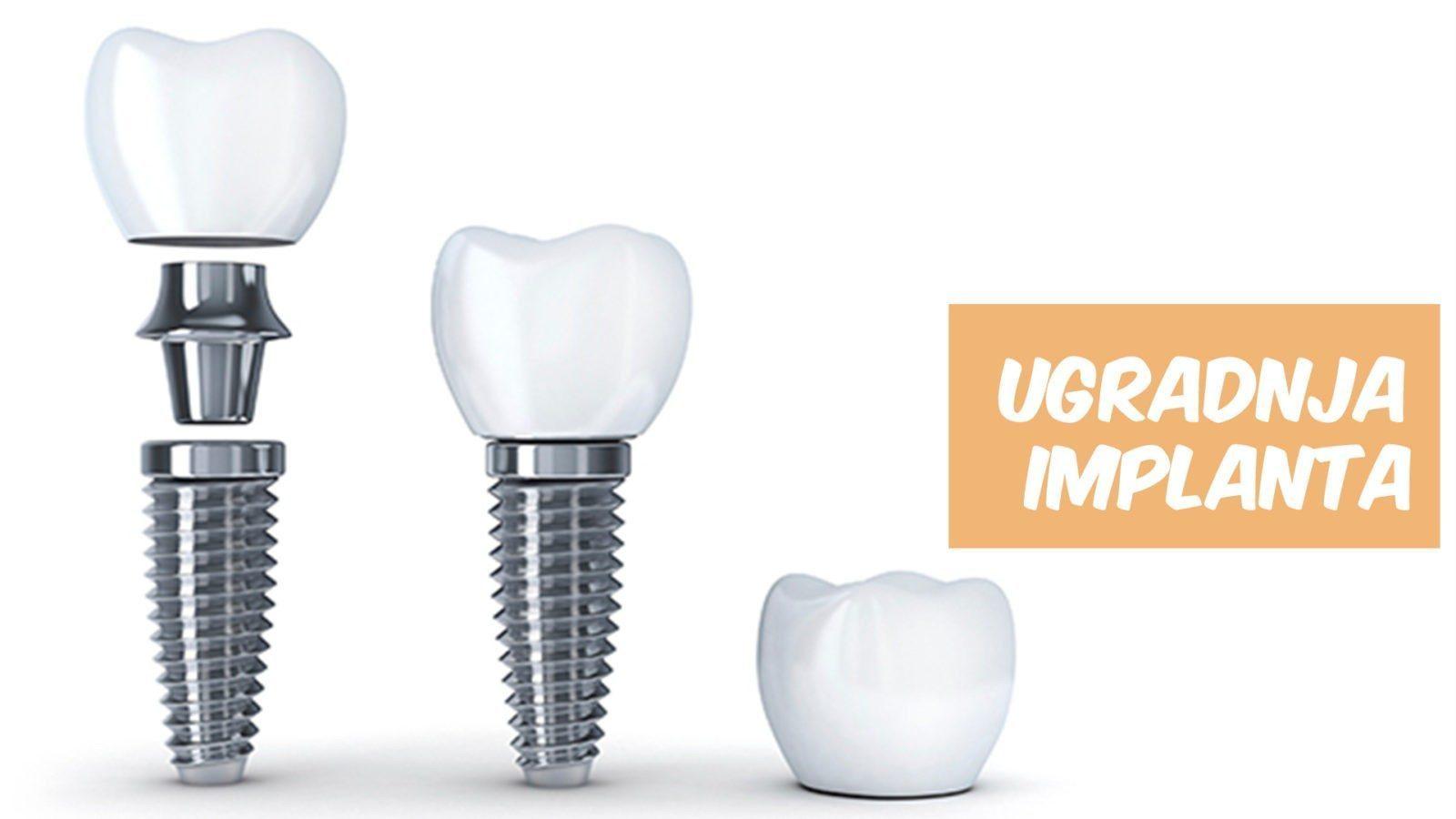 ugradnja implanta
