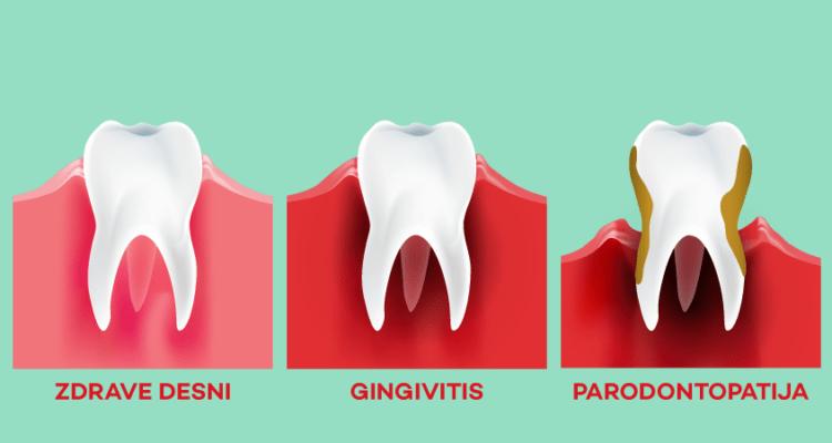 stepeni parodontopatije